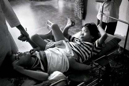 Conjoined twins, Tu Du Hospital, Ho Chi Minh City, Vietnam, 1987